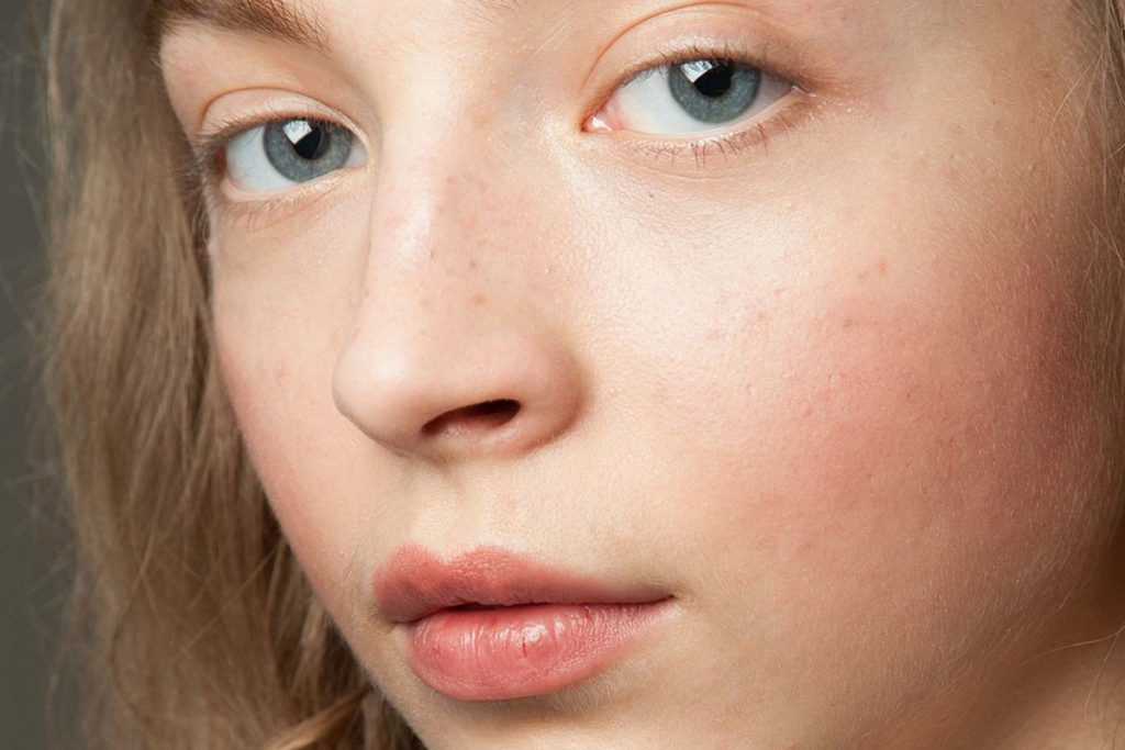 Things To Know About Sensitive Skin: Its Causes, Prevention and Care